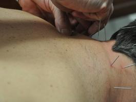 HERWIG VERGUCHT KINESITHERAPEUT- Mechelen - Dry needling