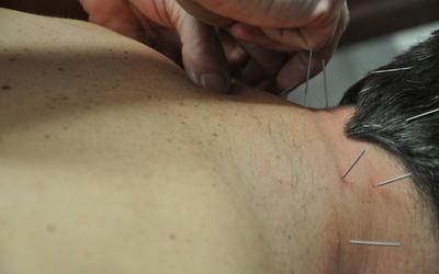 HERWIG VERGUCHT KINESITHERAPEUT - Dry needling